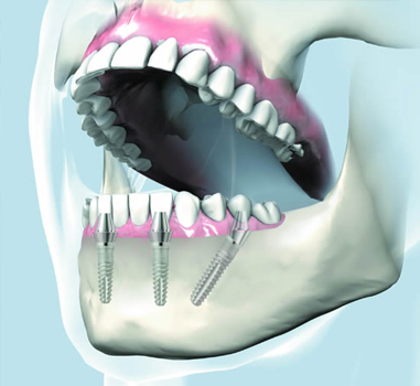 All on 4 Dental Implants Dr Orphanos