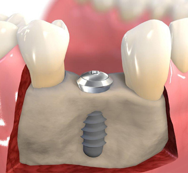 Bone Grafting Center 4 Smiles