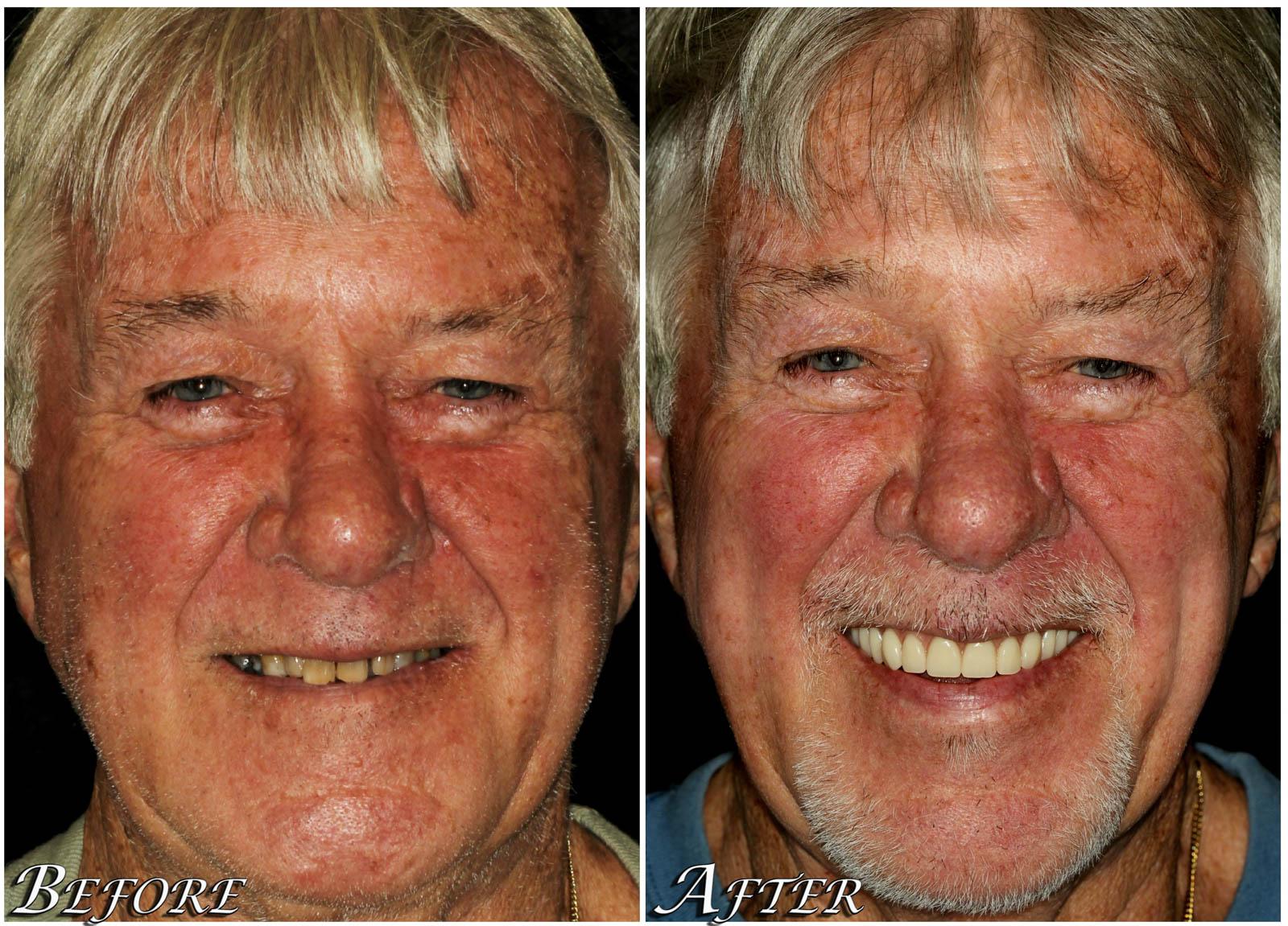 All on 4 Dental Implants Case 2