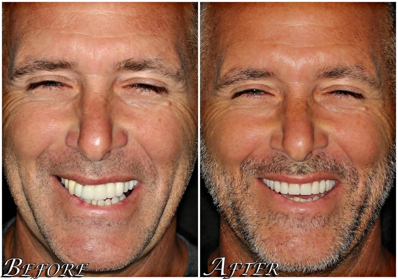 All on 4 Dental Implants Case 3