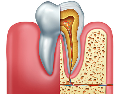 Endodoncia Root Canal