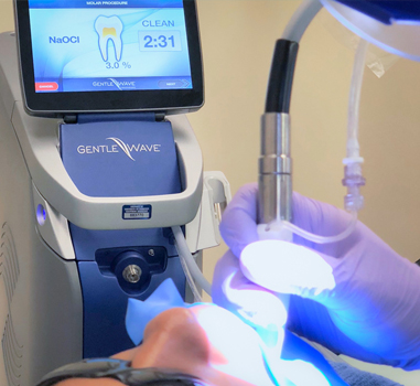 GentleWave Root Canal Procedure