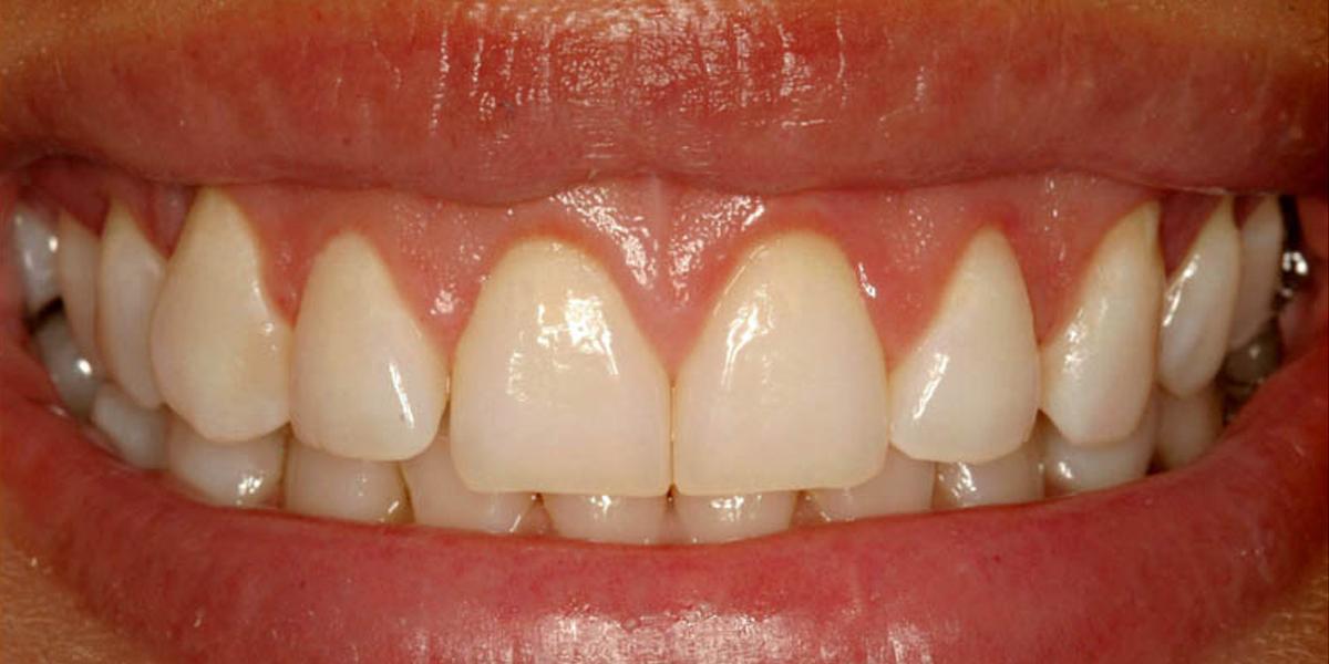 Gummy Smile After 1