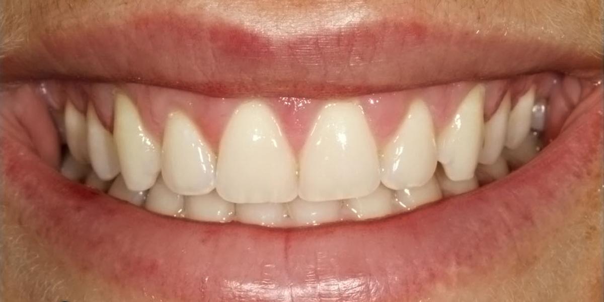 Gummy Smile After 2
