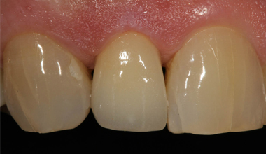 Natural looking implant