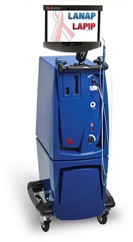 Máquina a laser LANAP