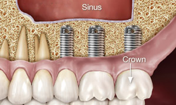 Sinus Grafting procedure