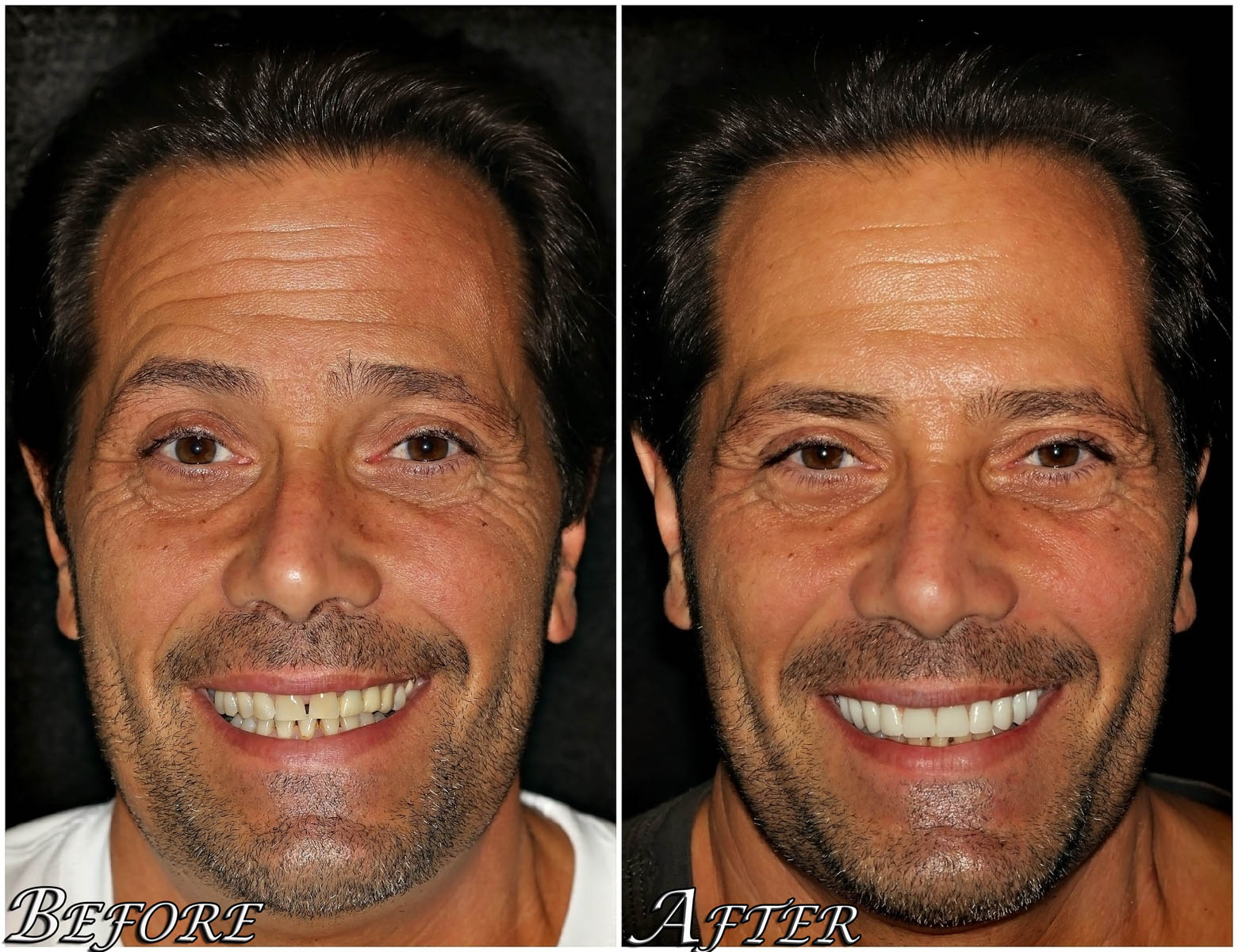All on 4 Dental Implants Case 4
